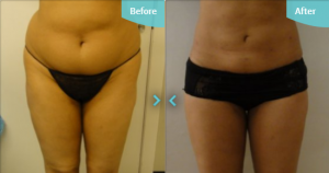 abs flanks thighs liposuction before after photo