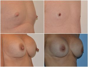 nipple-reduction-before-afters-the-private-clinic-web