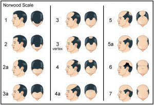 Male Pattern Hair Loss Norwood Scale