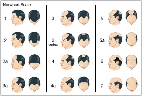 Norwood Scale The Private Clinic Hair Loss