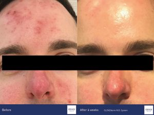 Acne treatment before and after results with Obagi Clenziderm Products