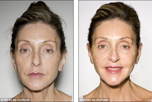 Organic Facelift Fat Transfer to the Face Anti-Ageing Before and After