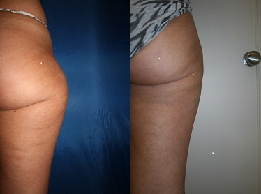 Outer thigh before and after Lipo