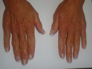 The Private Clinic:Hand Rejuvenation