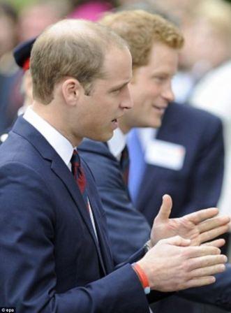 Prince William Hair Loss