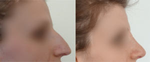 Before and after Rhinoplasty treatment