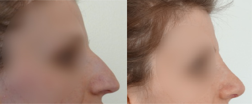 Before and after Rhinoplasty treatment by The Private Clinic's Mr. Davood Fallahdar.
