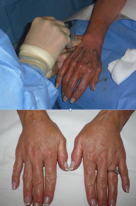 The Private Clinic: Hand Rejuvenation