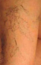 Spider veins what do they look like