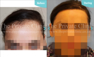 Traction alopecia before and after the private clinic treatment results
