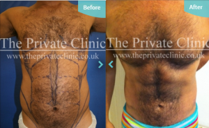 An example of VASER Hi-Def treatment performed at The Private Clinic.