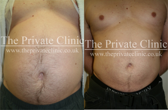 Before and After VASER Lipo at The Private Clinic