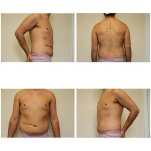 VASER Liposuction jake jamie before pics