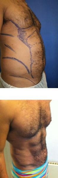VASER Hi-Def Lipo by Dr Dennis Wolf at The Private Clinic