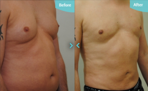 Before and after VASER treatment on the abdomen and for Male Breast Reduction at The Private Clinic.