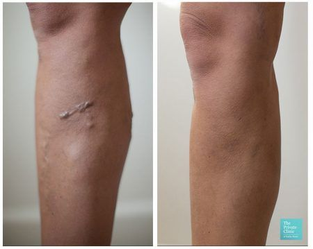 varicose vein leg treatment Endovenous Laser Ablation (EVLA) before after photo