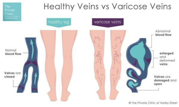 Healthy Veins vs Varicose Veins