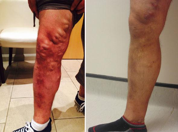 Varicose-veins-dr vohra