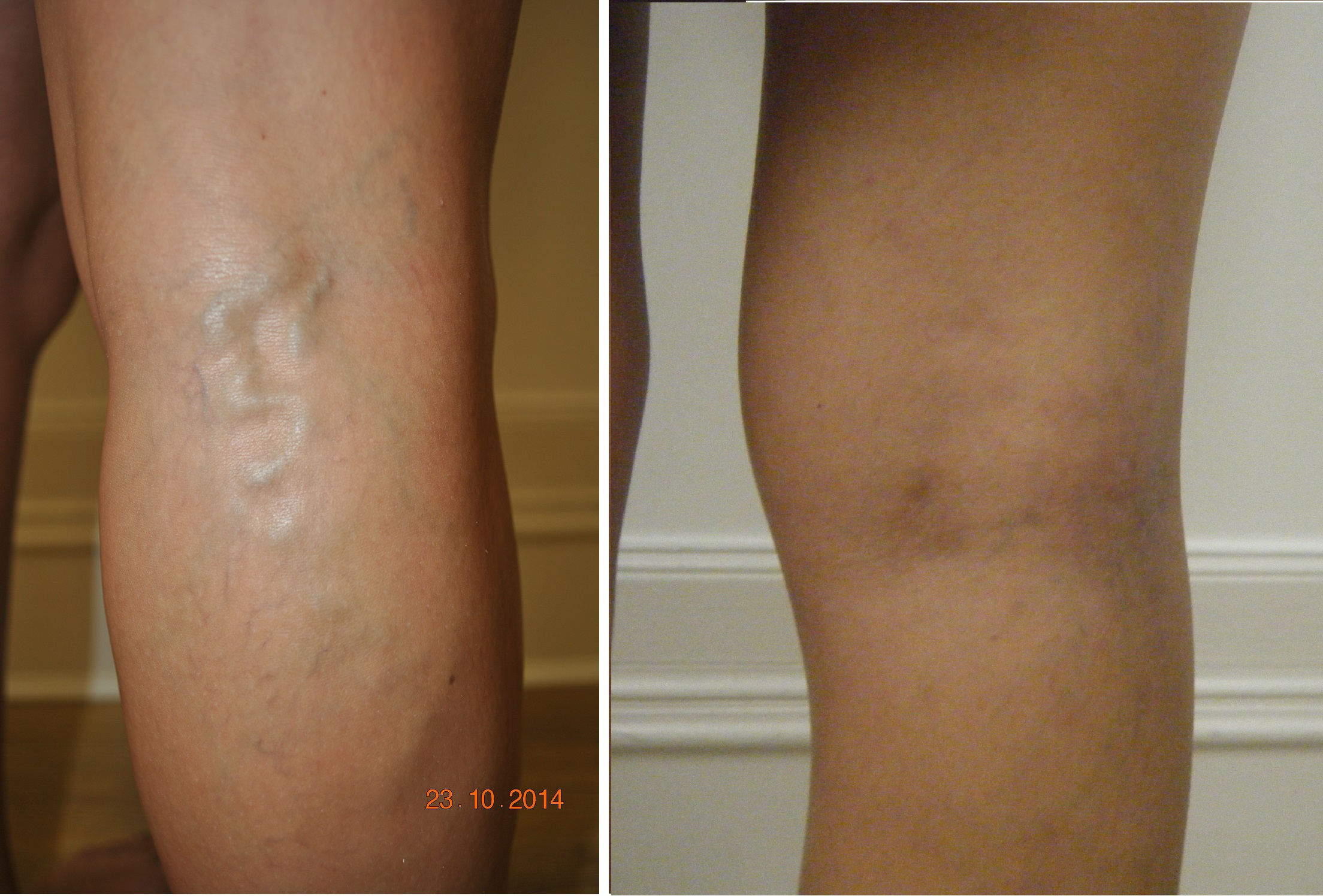 Before and After EVLA Varicose Vein treatment results - The Private Clinic Manchester