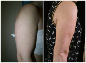 liposuction arm fat before after photo