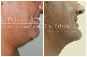 Vaser Liposuction chin before and after the private clinic
