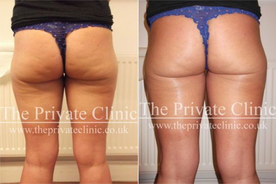 Before and After Velashape Cellulite Treatment at The Private Clinic