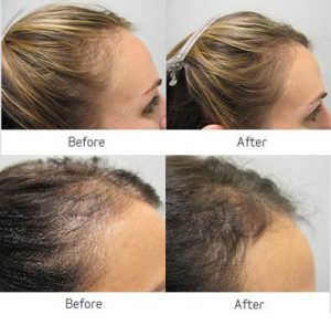 hair loss trichology treatments before after photo