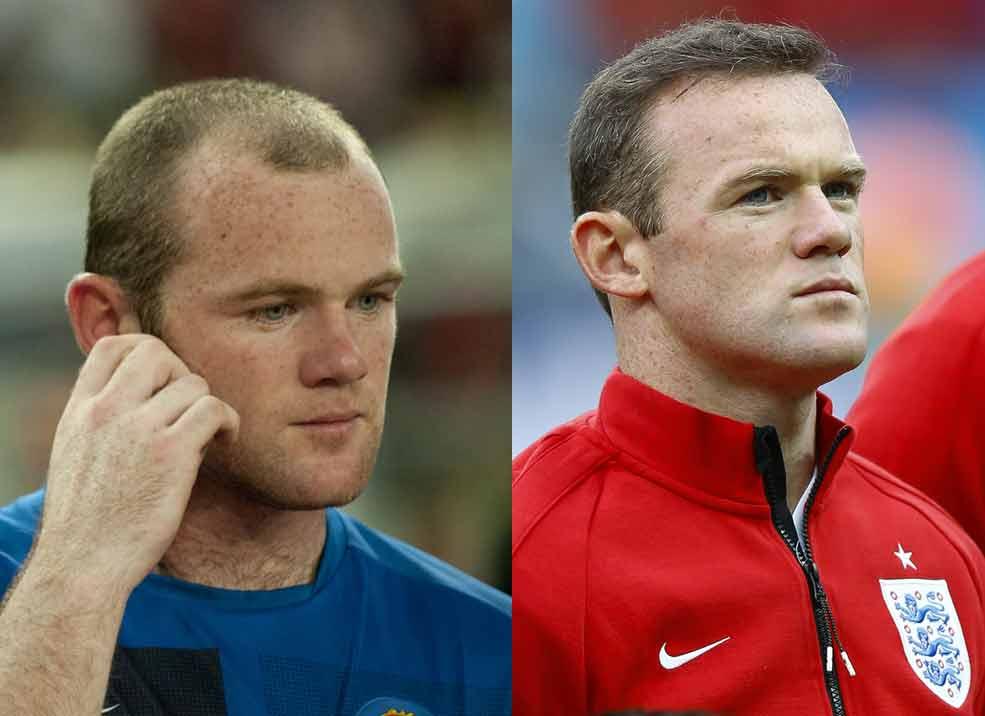 Wayne Rooney Before After Hair Transplant