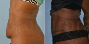 abdo-02-before-after-adrian-richards-aurora-part-of-the-private-clinic-web