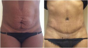 abdominoplasty before after the private clinic