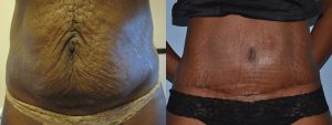 abdo surgery tummy tuck before after patient story