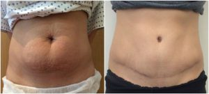 abdominoplasty tummy tuck before after photo