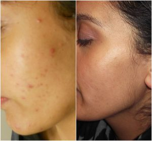 acne nlite before after the private clinic