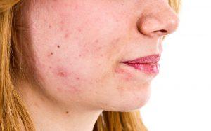 acne treatment private clinic london