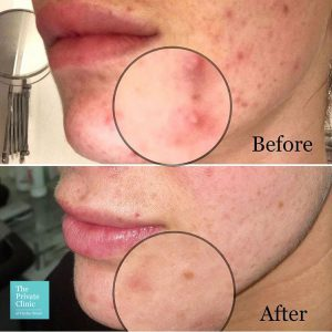 Before and after Chemical Peel Acne treatment at The Private Clinic