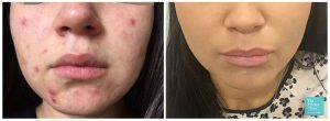 best acne treatment UK before after photos