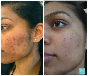acne treatment for sensitive skin before after photo london