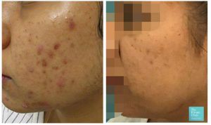acne treatments near me laser nlite results before after photo