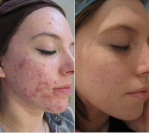 Before and after acne treatment at The Private Clinic.