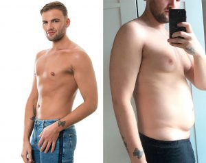 male chest reduction before after photos patient story review