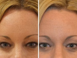 Anti-wrinkle injections to forehead at The Private Clinic
