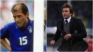 antonio conte before after hair transplant private clinic