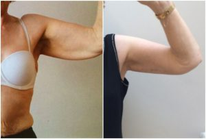 arm-lift-before-after-fallahdar-the-private-clinic
