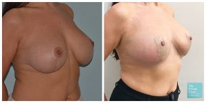 auto breast augmentation implant removal natural breast lift before after photo