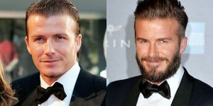beckham beard before after photo the private clinic
