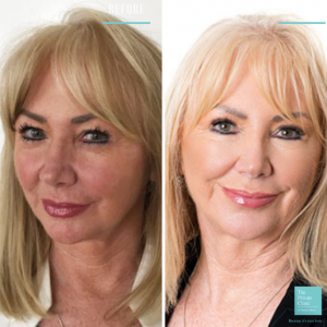 upper blepharoplasty eyelid surgery before and after photo