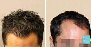 hair transplant left right temporal recession before after photo