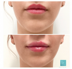 lip fillers before after photo