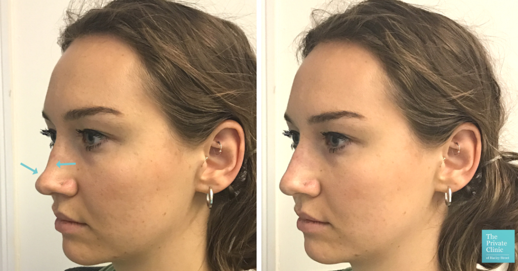 Non-Surgical Rhinoplasty before after photo