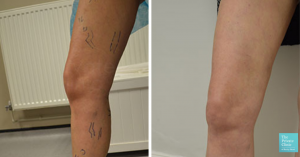 phlebectomy veins treatment before and after